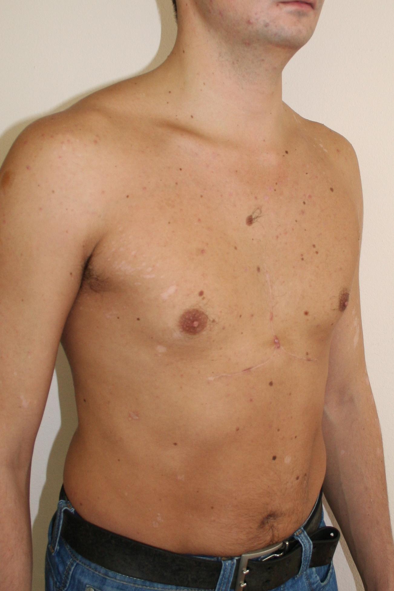 Детский крем от растяжек на груди
